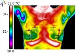 Thermography Image Blind Spot 1