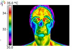 Thermography Sinus Infection