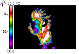 Thermography Image of TMJ left side of head