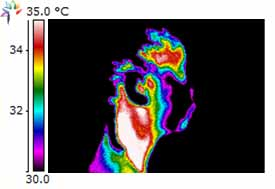 Thermography Image of TMJ right side of head