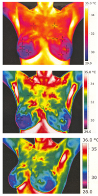Thermo Images of Breasts